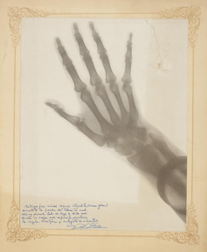 radiografia mâinii drepte a Reginei Elisabeta Queen Marys hand X Ray and trilobite fossil on sale at oddities auction in Bucharest this week