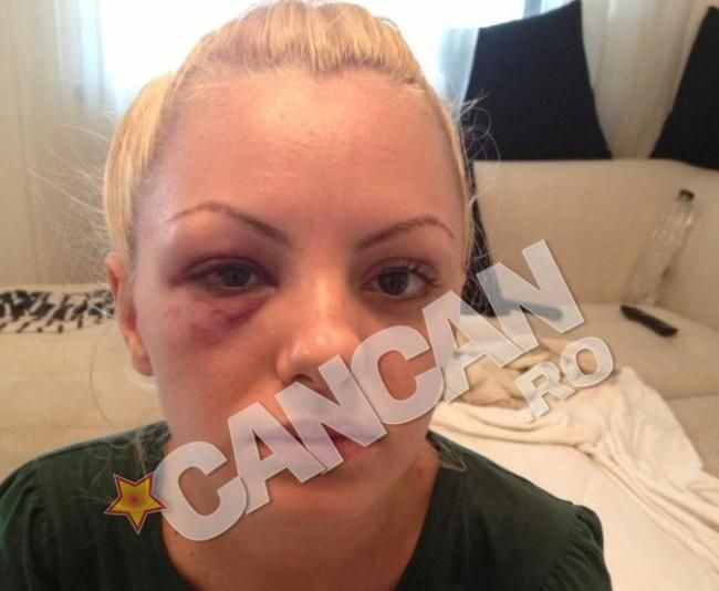 alexandra stan beaten can can